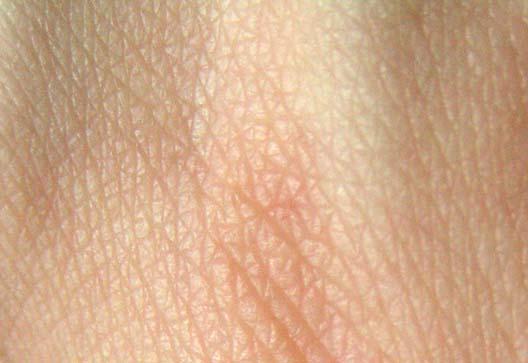 http://www.bgnauka.eu/pic/bio/human/Human_skin_structure.jpg