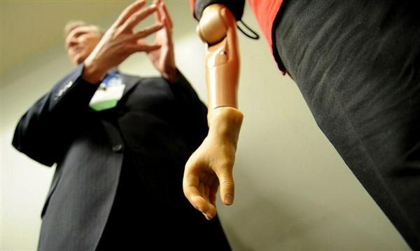 bionic-arm-hmed