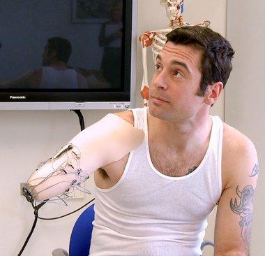 bionic-arm-hmed1